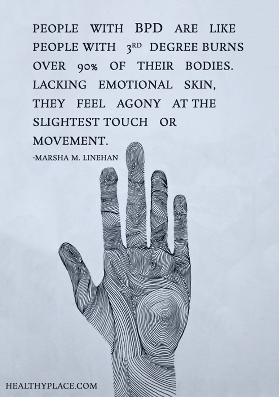 Quote about BPD - People with BPD are like people with third degree burns over 90% of their bodies. Lacking emotional skin, they feel agony at the slightest touch or movement.