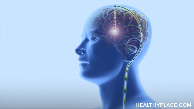Deep brain stimulation is a form of surgical treatment. It can be effective for treating brain disorders, but what are the risks? Find out on HealthyPlace.
